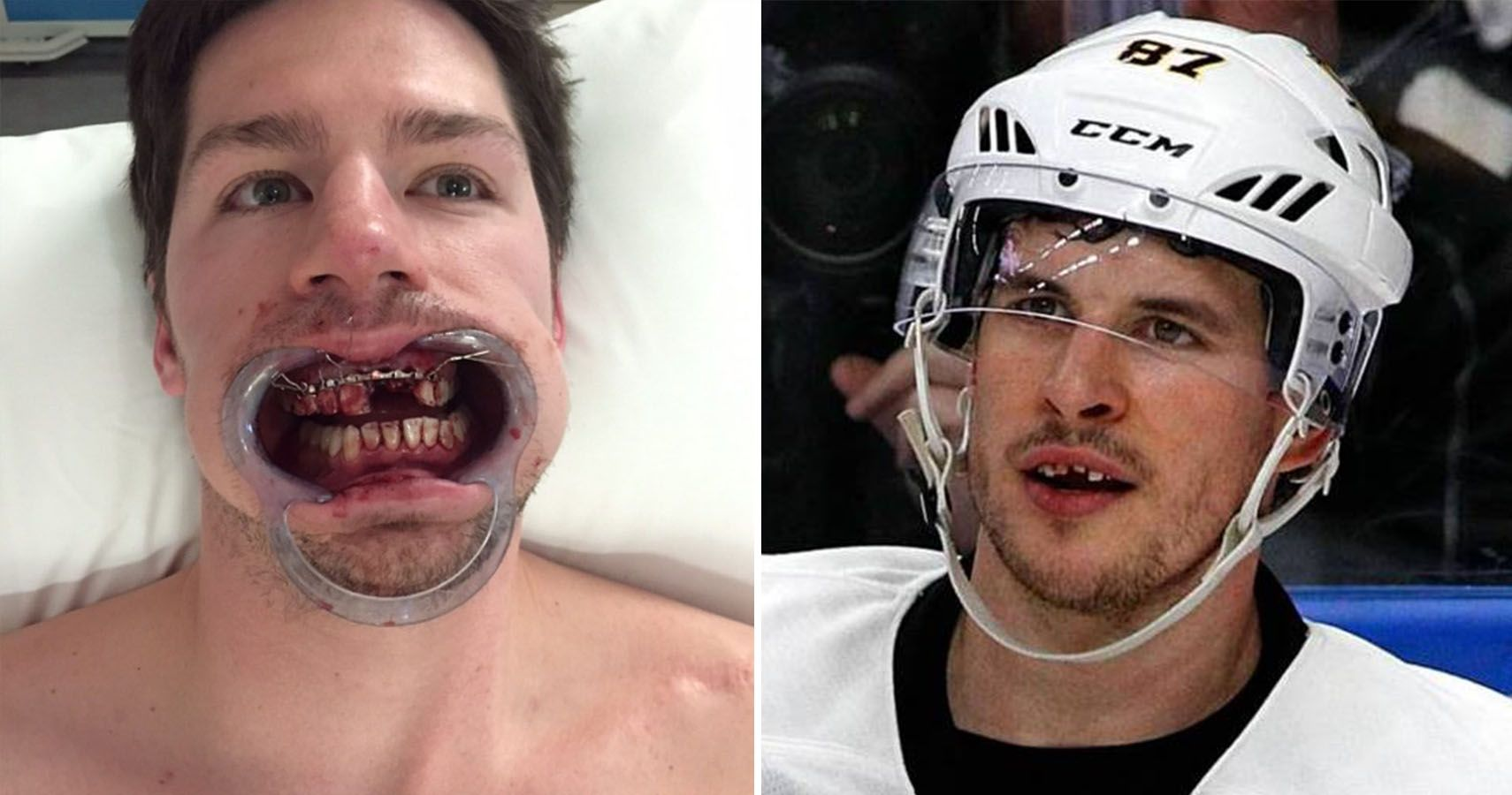 Pictures Of Nhl Players Who Lost A Tooth Thesportster
